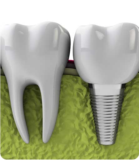 oral-surgery-dental-implants