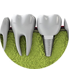 Oral Surgery Implants/ Extractions