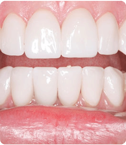 periodontal-gum-therapy